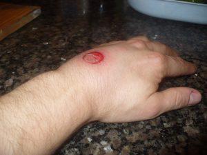 Handverletzung durch Gummigeschoss